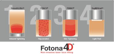 fotona4d-2